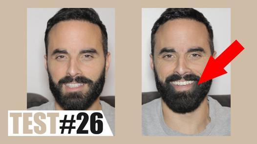 toppik barbe